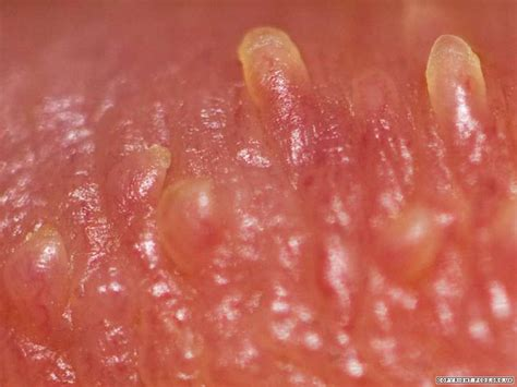 white spot glans after using hair removing cream picture 4