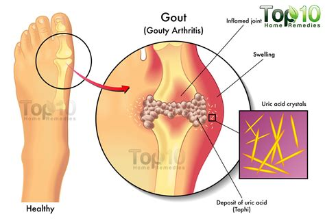 causes of body joint pain picture 10