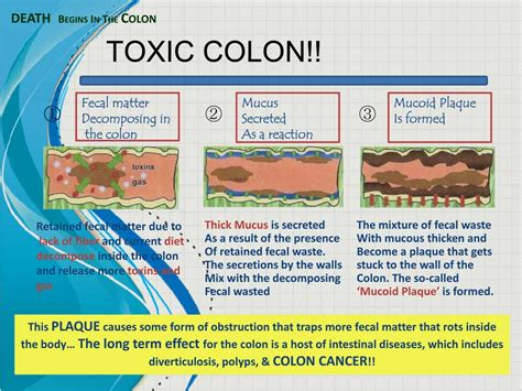 colon cleasing picture 10
