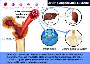 acute leukaemia and liver failure at diagnosis picture 7