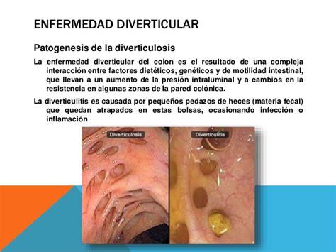 Diverticulosis of colon picture 7