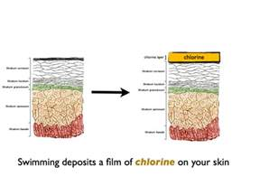 chlorine effects on skin picture 1