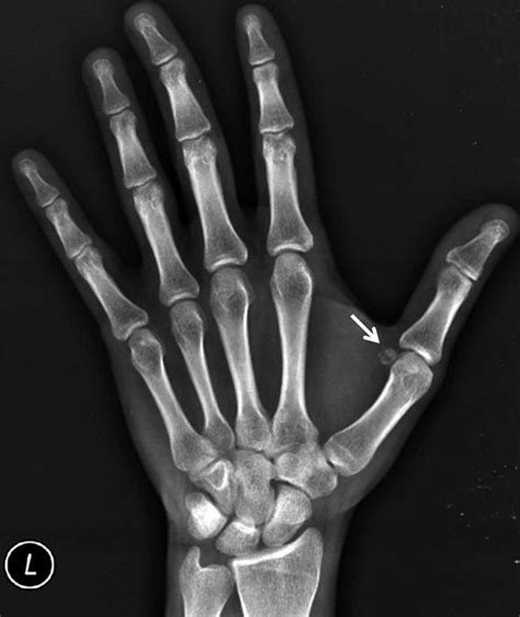 hand and foot joint pain picture 14