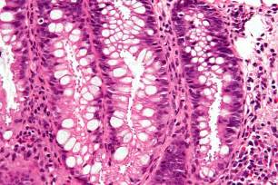 intestinal infection symptoms picture 2