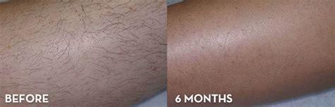 laser hair removal denver picture 1
