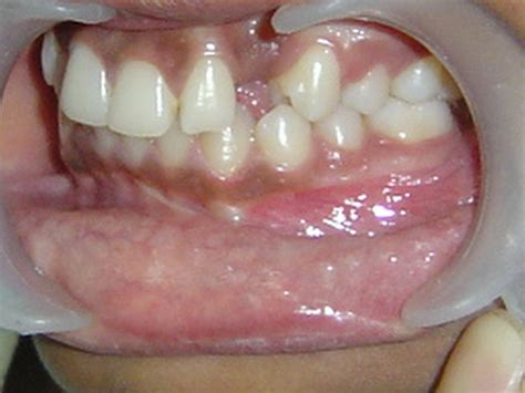 correcting impacted teeth picture 5