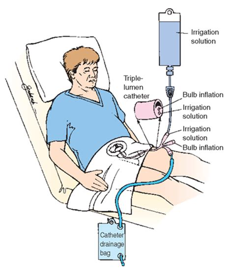 continuous bladder irrigation picture 5