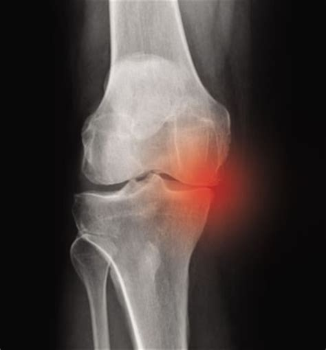 medial knee pain + joint space picture 1