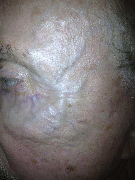 swollen temple veins picture 7