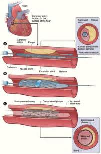 heart stents medications picture 9