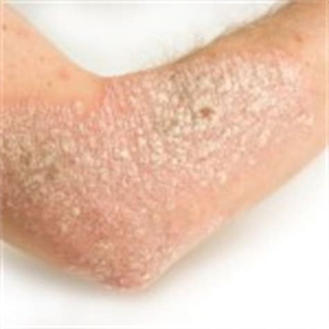 revitol hair removal cream making penis swell picture 8