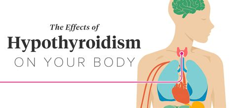 chronic depression,menopause and underactive thyroid picture 9