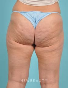 nonsurgical liposuction and stretch mark removal picture 2
