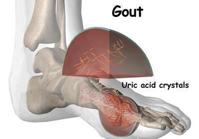 gulay na may uric acid picture 3