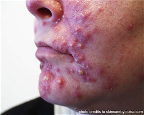 treating cystic acne picture 9