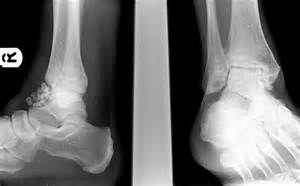 ankle joint effusion picture 21