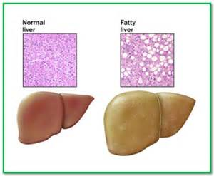 fatty deposit on liver picture 5