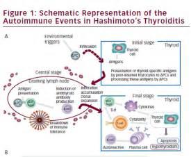 autoimmune thyroid dis picture 11
