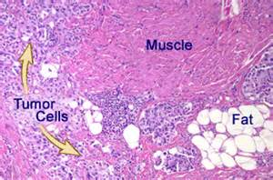 bladder cancer that spread to lymph nodes picture 10