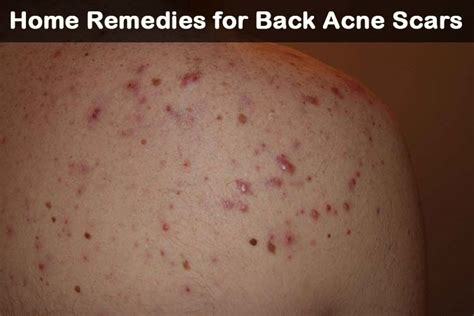 acne treatment for back picture 15