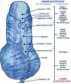 hypospadias bladder picture 10