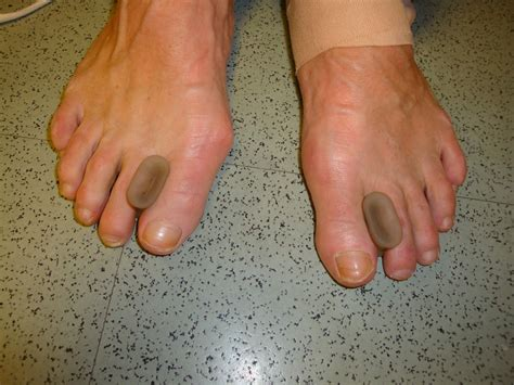bunion pain relief picture 6