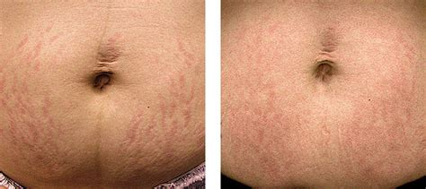 laser stretch mark removal dermatology picture 3