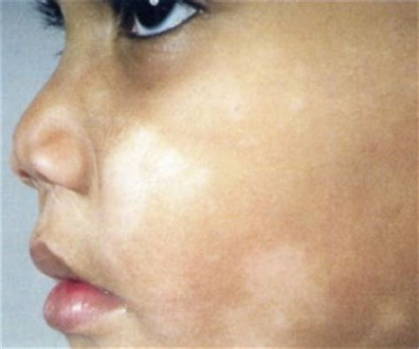 what causes the skin to tur white when picture 13