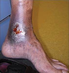 venous skin ulcer pictures picture 1