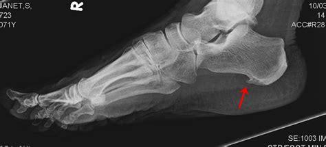 heel pain relief picture 1