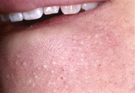 rosacea and skin cancer picture 18