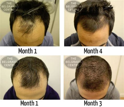 can taking the prescription drug levothyroxine result in hair loss picture 9