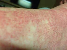 lpw blood sugar and hives picture 2