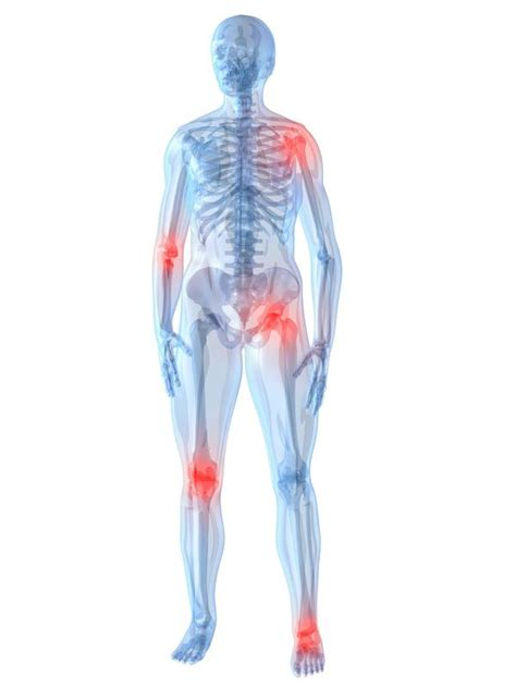 joint pain and irregular bleeding picture 15