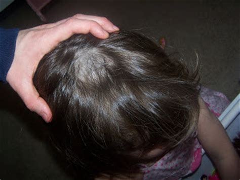 aliminum toxicity in scalp hair picture 8