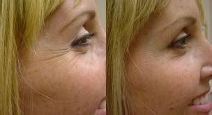 laser hair removal denver picture 14