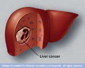 cancer of the liver picture 9