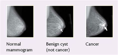 breast augmentation mage picture 4