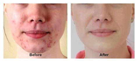 aloe vera and acne spot treatment picture 6