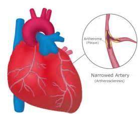 coronary heart disease picture 5