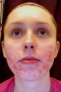 antibotics for acne picture 3