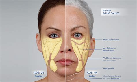the human face gradually aging pictures picture 9