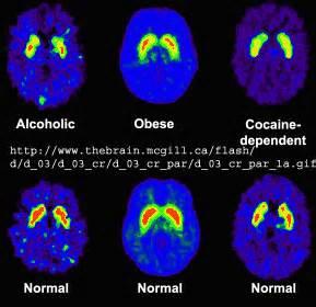 medicine that resets brain receptors picture 15