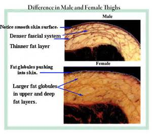 who does subcision for cellulite in kentucky picture 3