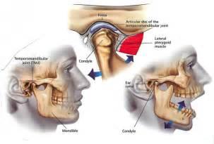 miami temporo-mandibular joint pain picture 10