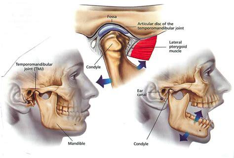 tempormandibula joint painr picture 13