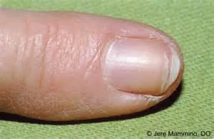 splitting toe nails picture 6