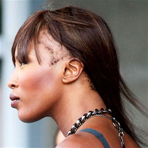 correct hair thinning in women picture 13