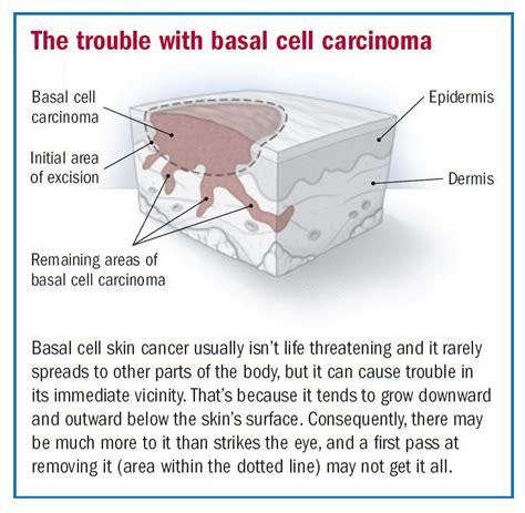 dermatologist skin tumors picture 19