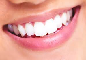 maryland teeth whitening picture 7